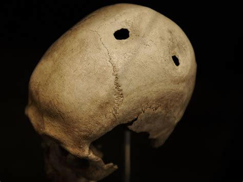 Amazing Things We've Learned From 800 Ancient Skull Surgeries