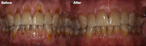 Dental Images Before and After in Indianapolis, IN